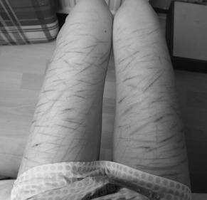 black-and-white-body-cut-cuts-Favim.com-833567